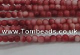 CRF426 15.5 inches 2mm round dyed rain flower stone beads wholesale
